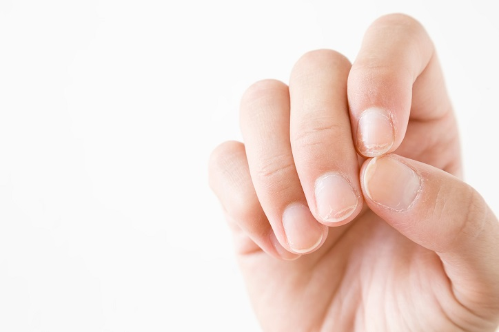infected nail cuticles