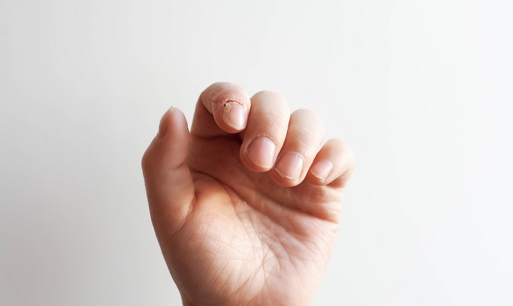 How to treat infected cuticles